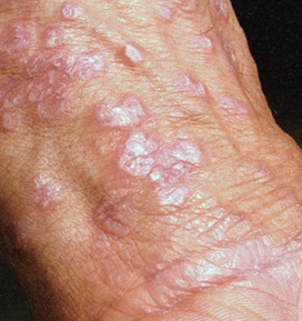 Лечение хронического тонзиллита гомеопатическими препаратами